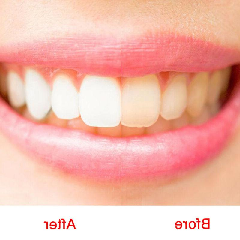 1pcs Tooth Whitening Water Clear Hygiene Dirt