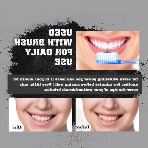 Natural Whitening Stain Teeth