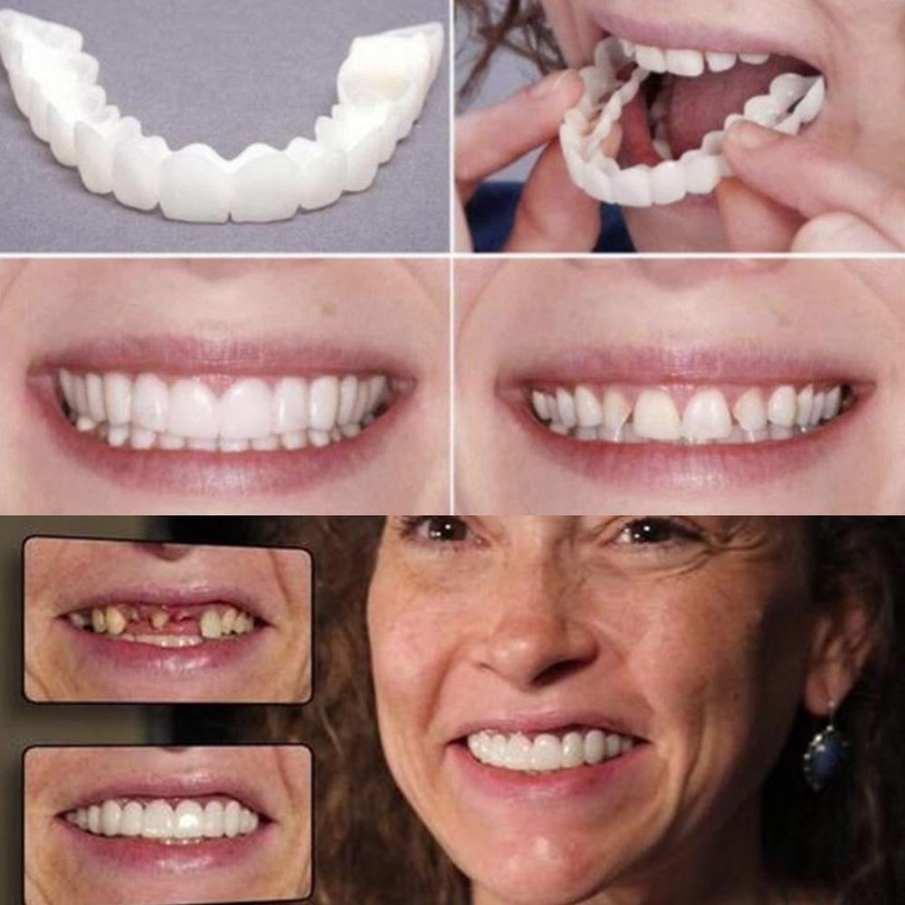 Adult Veneer Cover Fake Tooth Care