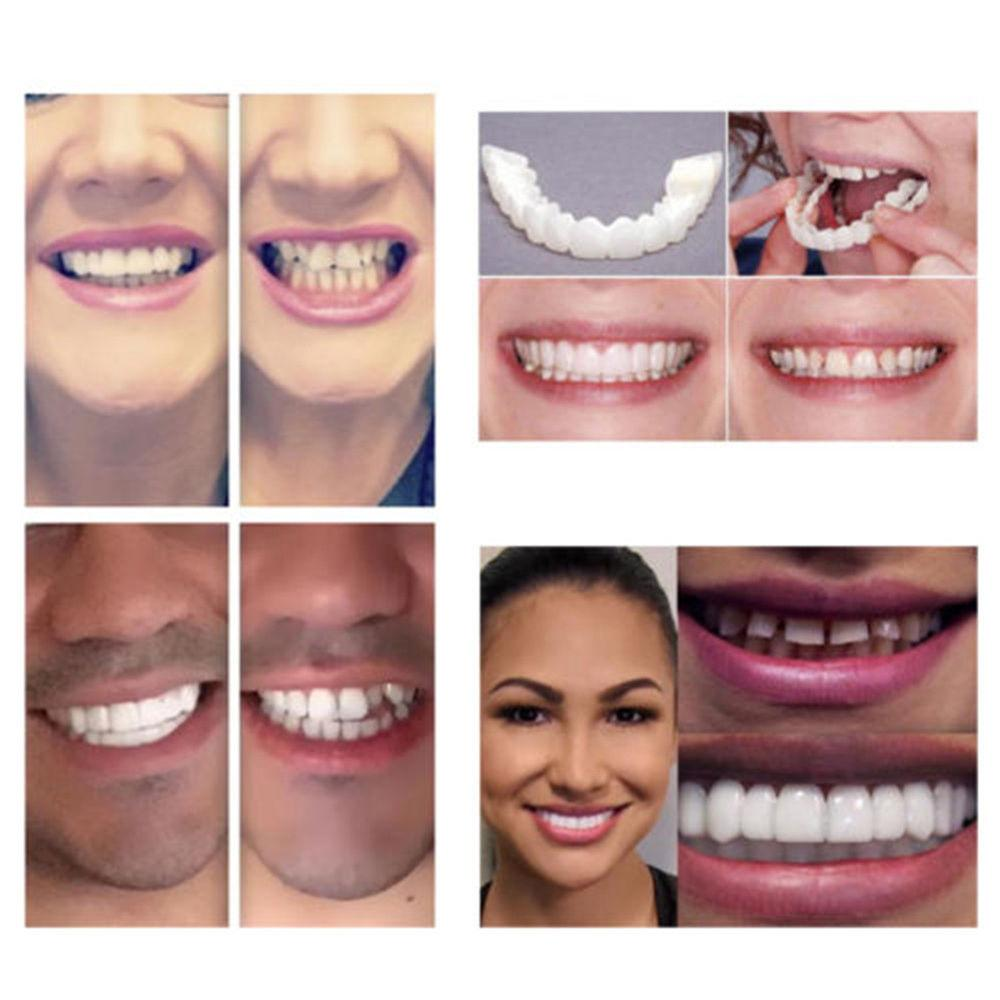 Adult Flex Teeth Cover Whitening Tooth Fits