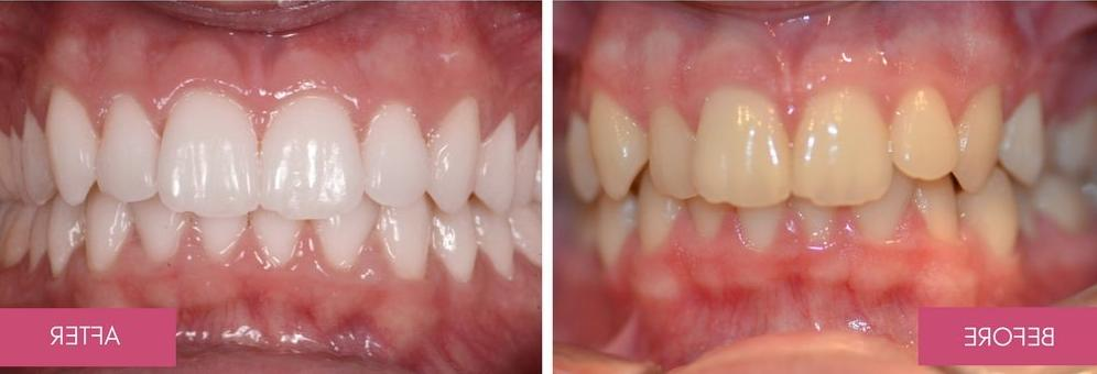 Bamboo Whitening Toothpaste Bad Breath