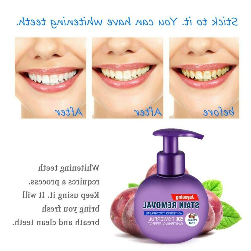 Intensive Removal Whitening Gums Passion Fruit