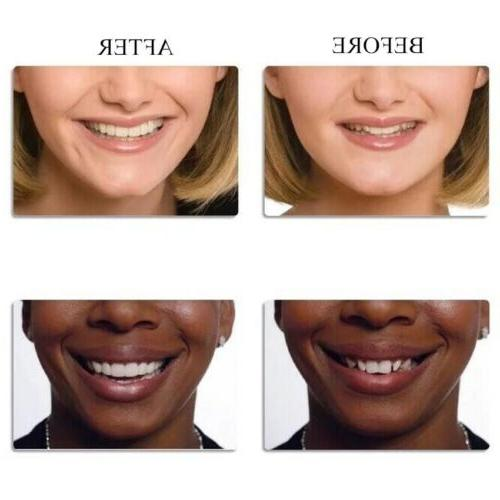 Perfect Dental Tooth Correction
